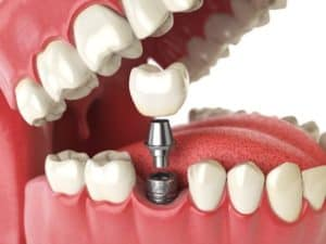 virtual dental implant spokane washington