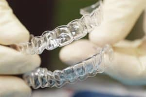 Invisalign clear retainers spokane washington