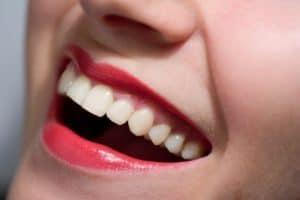 Dental Bonding Spokane