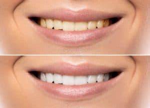at home teeth whitening Spokane washington