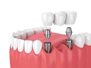 dental bridges Spokane wa