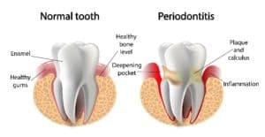 periodontics Spokane wa